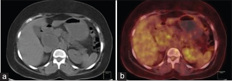 Figure 3: Axial computerised tomography (a) and fused positron-emission tomography/computerised tomography (b) images showing a non-fluorodeoxyglucose-avid aortocaval mass lesion measuring 4.0 (AP) cm × 4.9 (ML) cm × 4.2 (CC) cm