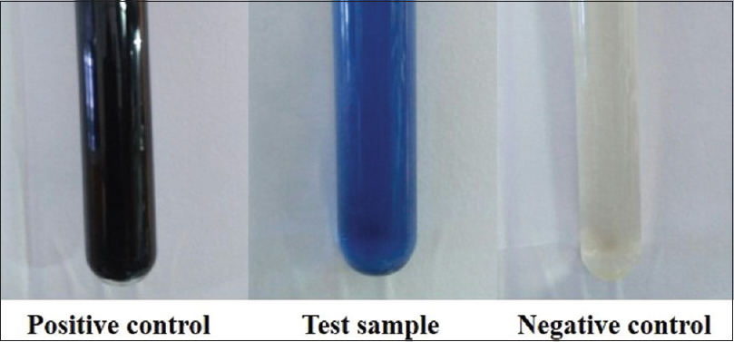 Figure 1: Urine sodium dithionite test showing positive result in the test sample